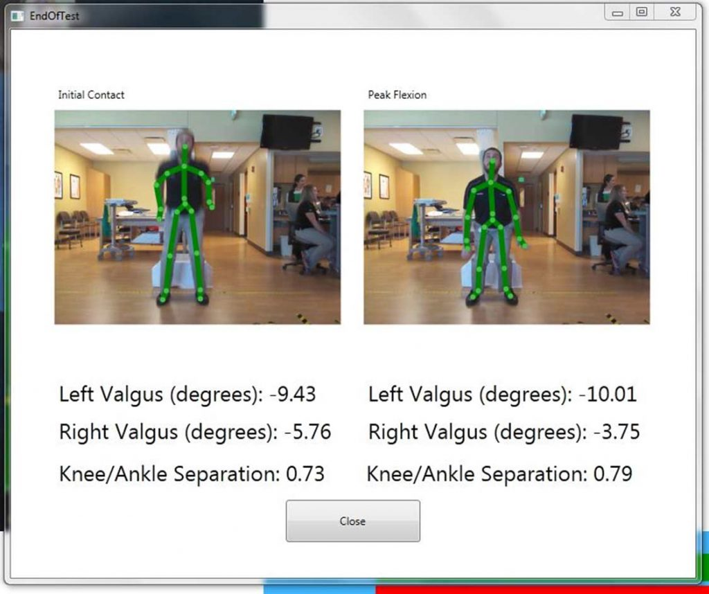 Screenshot of the ACL Gold measurements at initial contact and peak flexion, as captured by the Microsoft Kinect during the Drop Vertical Jump