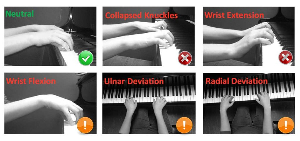 Figure 2. Hand postures observed for pianists. Extended periods of time spent in the non-neutral posture can be harmful for the pianist.